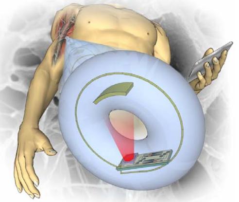 Implanteerbare glucosemeter
